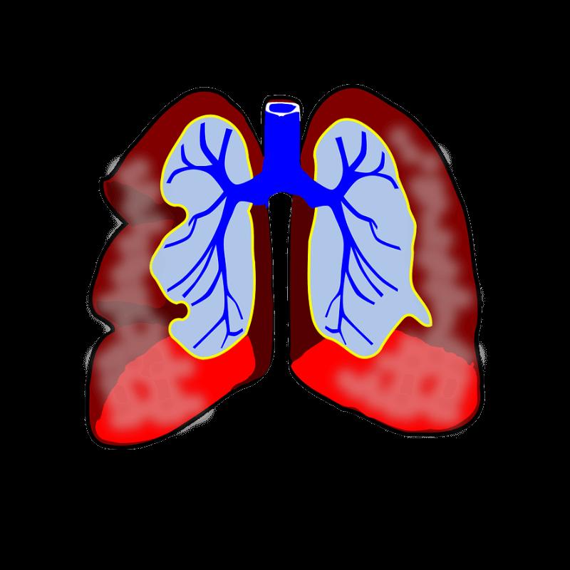 jangkitan saluran pernafasan